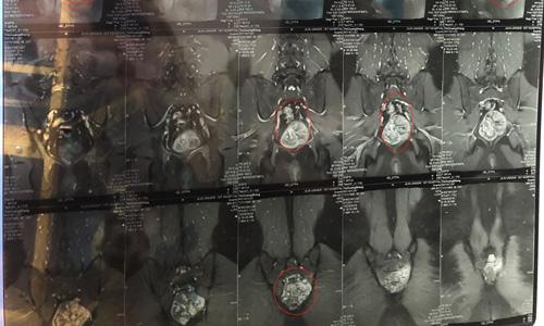 2019年10月脊索瘤病友微信群聊笔记
