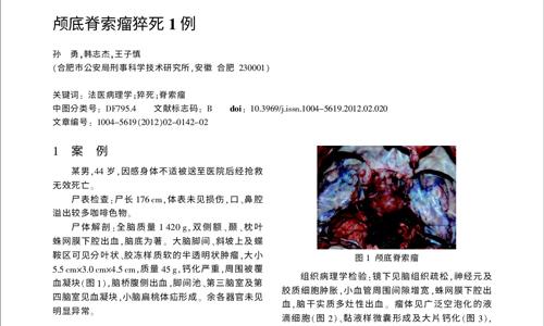 颅底脊索瘤猝死1例2012