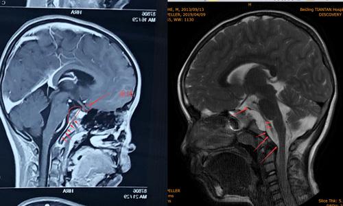 颅底脊索瘤,硬膜底下生长慢