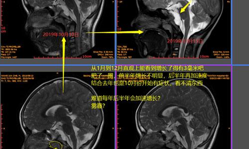 7岁男孩上斜坡脊索瘤爸爸-王仙