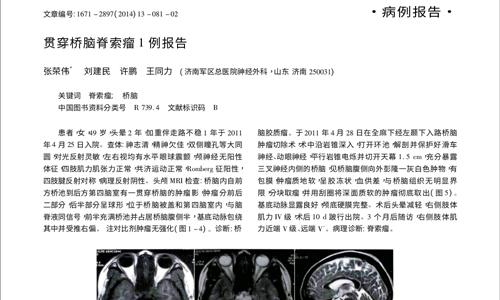 贯穿桥脑脊索瘤1例报告2014