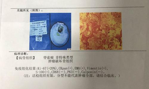 脊索瘤-骶骨病友放医研会诊-王仙总结+猜测