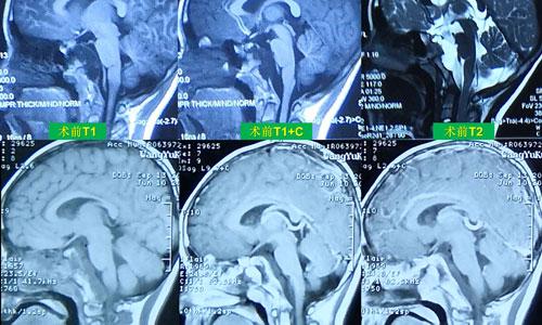 7岁男孩颅底脊索瘤治疗经历-持续更新20200914